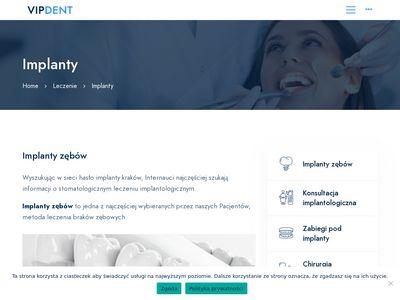 Implanty kraków