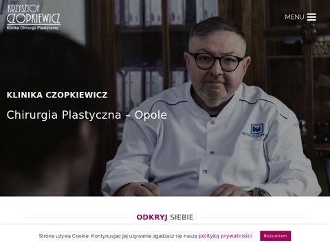 Czopkiewicz : Chirurg plastyk