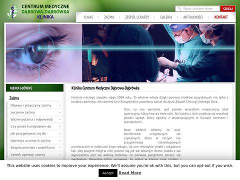 Usuwanie za膰my - Centrum Medyczne D膮browa-D膮br贸wka