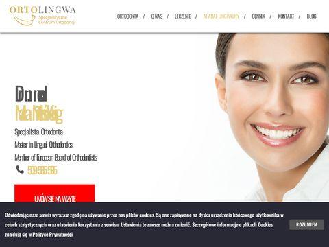 Leczenie wad zgryzu – Mituś-Kenig, Kraków