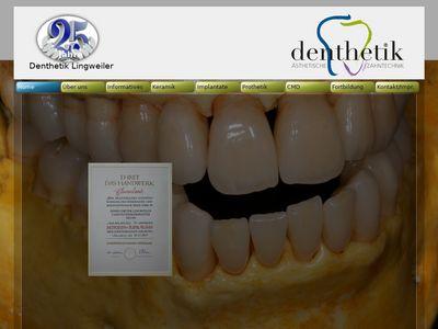 Denthetik Lingweiler Neuss