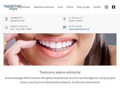 Impla Dental Clinic