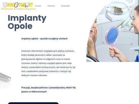 Implantyopole.pl